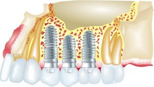 implants South Huntington NY