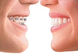 invisalign South Huntington NY