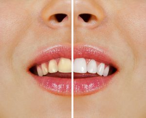 whitening South Huntington NY